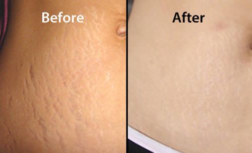 Stretch Marks Removal Treatment – The Different Options